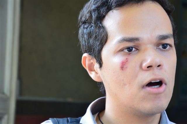 Marcelo Victor de Lima foi acertado por um projétil de uma das bombas de efeito moral lançadas pela Polícia Militar de Choque