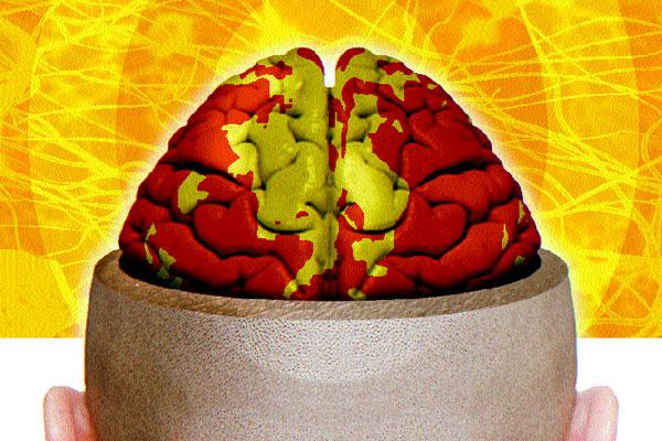 Natal é pioneira no Brasil na realização da Cintilografia de Perfusão Cerebral, procedimento criado na Califórnia, que distingue doenças psíquicas