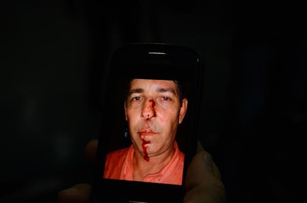O secretário Clodoaldo Trindade foi agredido no início da noite desta quinta-feira