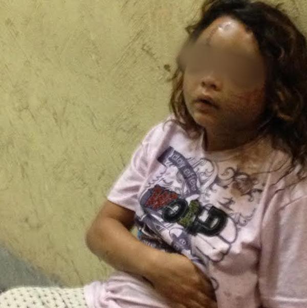 Mulher de 25 anos foi agredida pelo ex-companheiro e precisará ser operada
