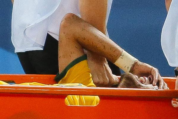 Neymar  fraturou a terceira vértebra do lado esquerdo da coluna