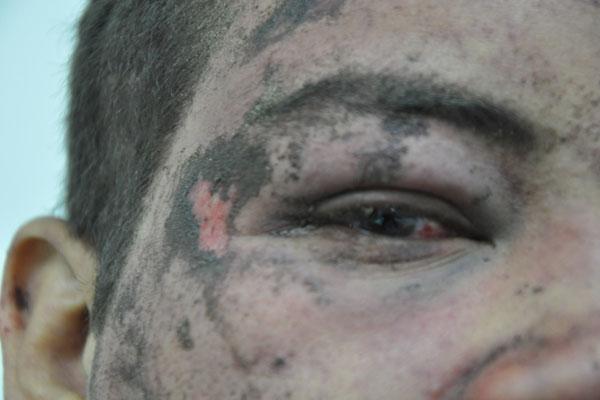 Jepherson Alcaniz foi confundido com um assaltante e quase foi linchado por populares