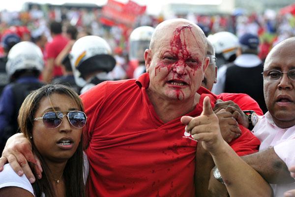 Sangrando, após ser atingido por um golpe na cabeça, manifestante contrário à terceirização é levando para atendimento médico