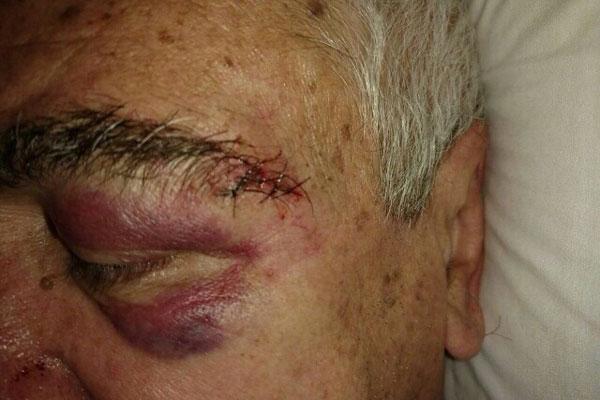 Médico Antônio Andrade precisou de pontos no supercílio após agressão