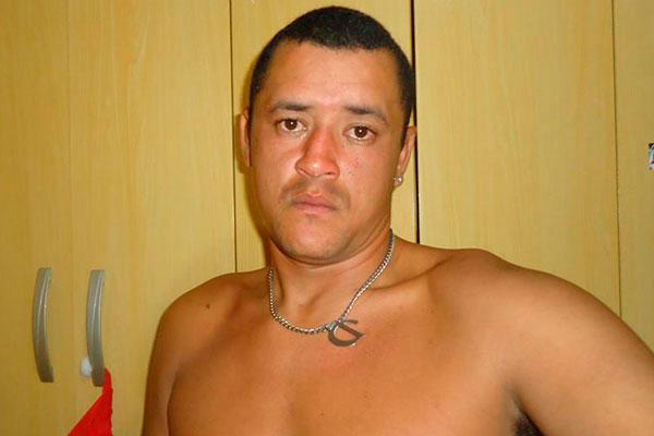 Pablo Diego, de 34 anos, teve a perna direita amputada e foi submetido a uma revascularização nos braços