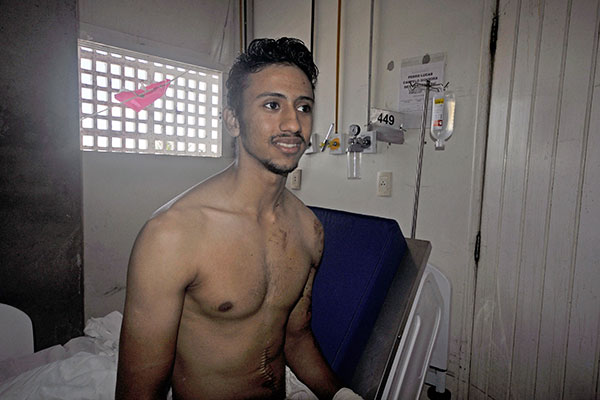 Pedro Lucas, 19, perdeu o baço e teve fratura exposta em acidente