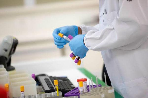 Dos casos analisados, quatro foram confirmados para outras doenças, dois descartados e apenas um causado por bactéria