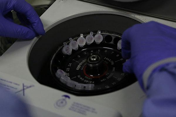 Casos passaram a ser confirmados em exames laboratoriais