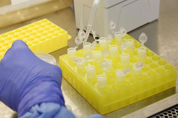 O RN tem um caso confirmado do novo coronavírus; medidas vem sendo tomadas para frear avanço da doença