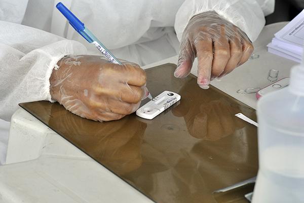 Novos 534 casos de infecção pelo coronavírus foram confirmados nesta segunda