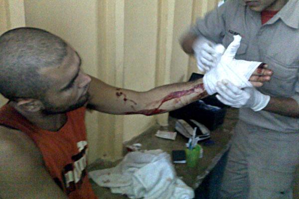 José Rodrigo da Silva foi um dos detentos que precisaram receber atendimento médico