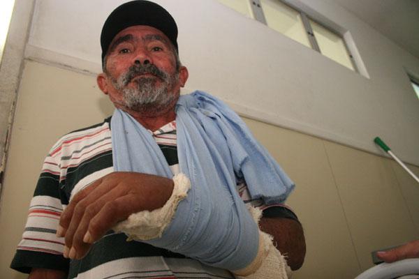 O caseiro Geraldo Bernardo, 61 anos, aguardou por quase um mês uma cirurgia no punho fraturado
