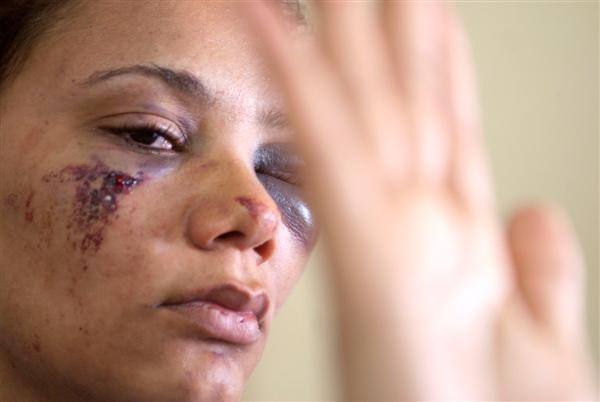 Ellen Rodrigues foi agredida pelo próprio marido